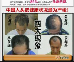 نتيجة حقيقية الأصلي growth4in1 الشعر أمة الله شو فرقعة الشعر إضافية الشعر الكثيف السائل
