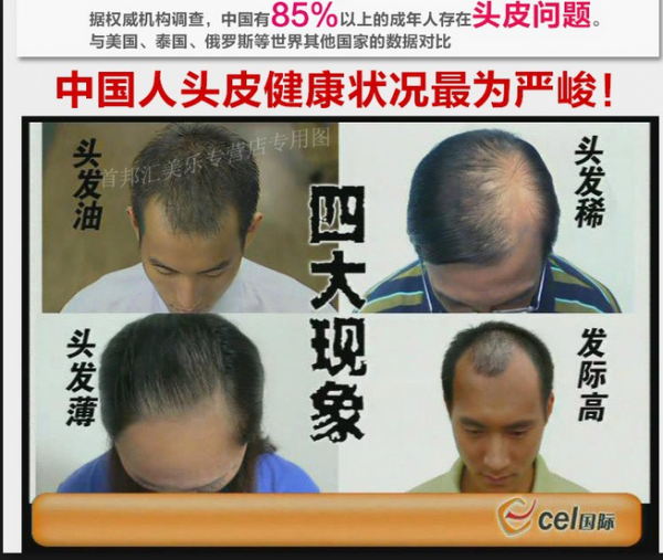 نتيجة حقيقية الأصلي growth4in1 الشعر أمة الله شو فرقعة الشعر إضافية الشعر الكثيف السائل - 1